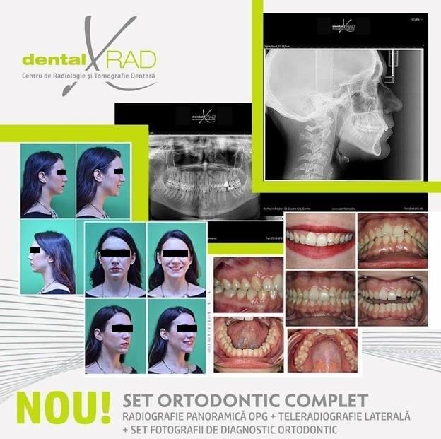 dosar ortodontic