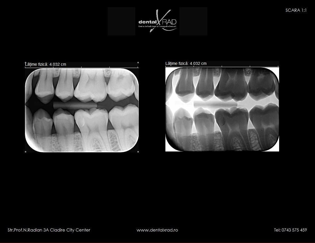 radiografie bitewing