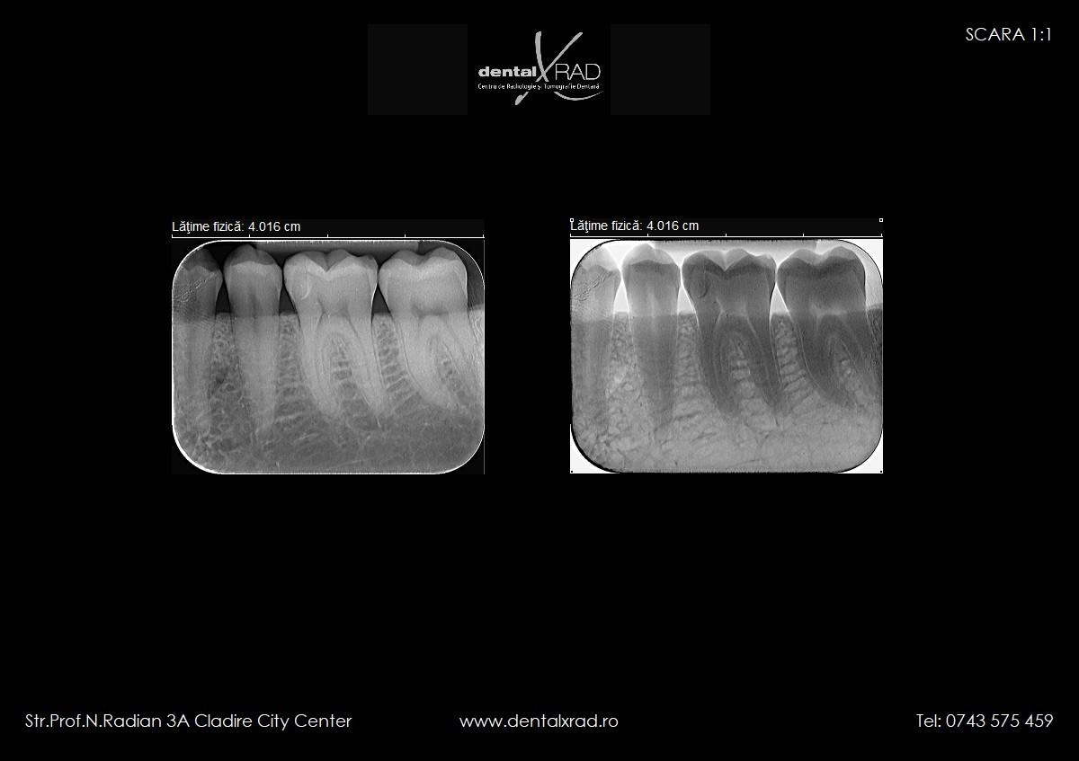 radiografie dentara, radiografie retroalveolara