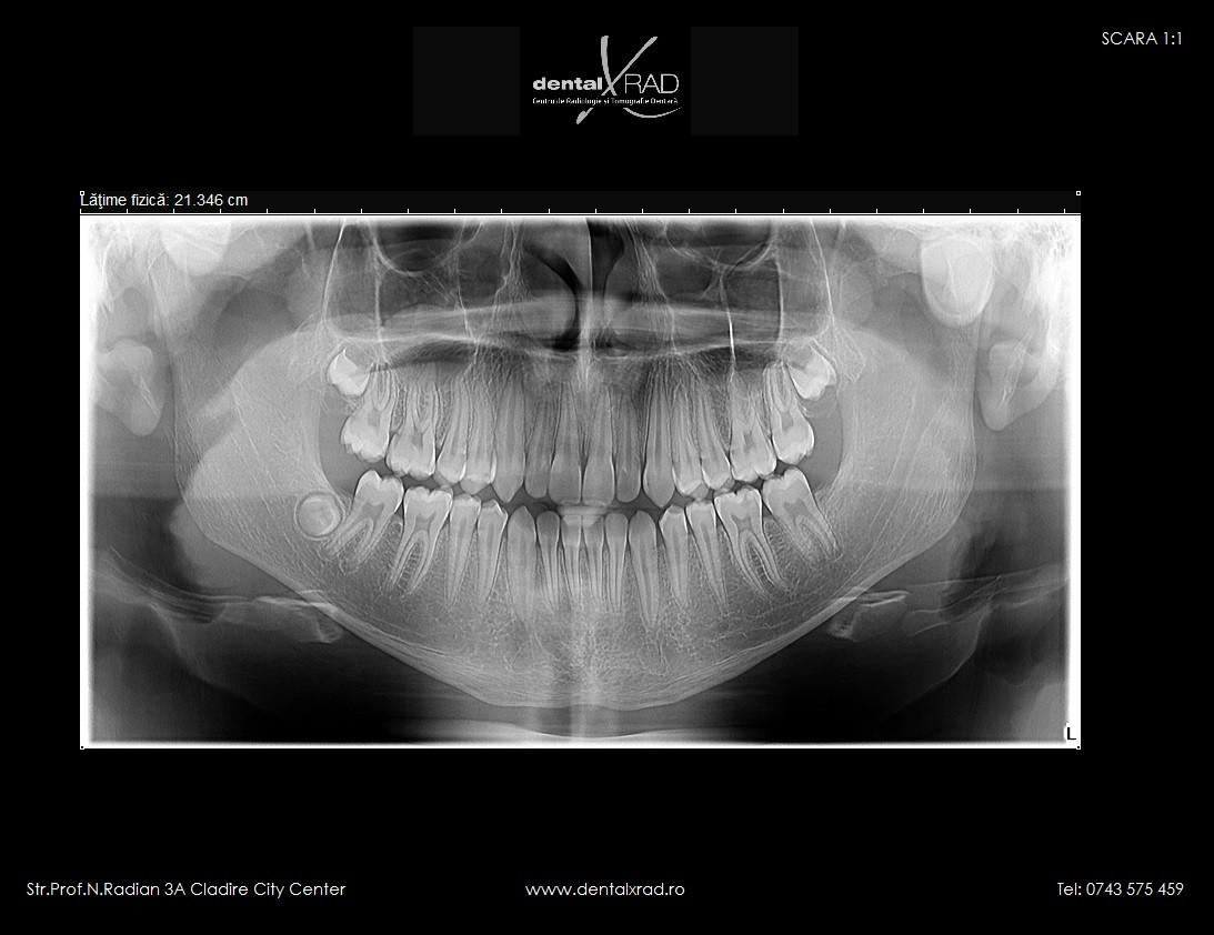 radiografie panoramica